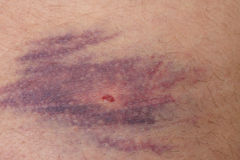 Closeup of bruise over white skin Stock Photos