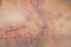 Closeup on a Bruise on wounded woman leg Stock Photos
