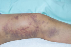 Closeup on a Bruise on wounded woman leg. Skin Stock Photo