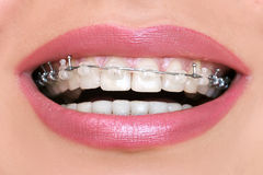 Closeup Ceramic and Metal Braces on Teeth Stock Photo