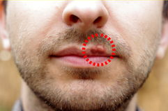 Closeup of a common cold sore virus herpes. Closeup of a common cold sore virus herpes with marked cold sore Stock Image