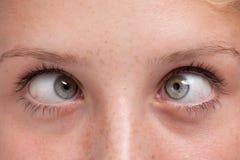 Closeup cross-eyed Stock Photo