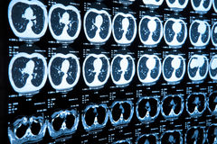 Closeup of a CT scan Stock Photo
