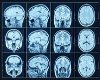 Closeup of a CT scan with brain. Science and education mri backg. Round Royalty Free Stock Image