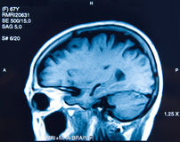 Closeup of a CT scan woman brain. Stock Photography