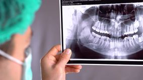 Closeup of dentist looking at dental x-ray plate. At a reception the dentist. Dentist shows on the tablet x-ray her. Closeup of dentist looking at dental x-ray stock footage