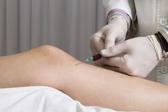 Closeup of doctor injecting platelet rich plasma. Treatment to female patients knee, closeup of hands in gloves and syringe stock image