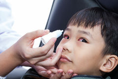 Closeup of doctor pouring eye drops in eye patient Royalty Free Stock Photos