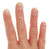 Closeup of Eczema Dermatitis on Fingers. Closeup of Eczema Dermatitis on Back of Fingers Royalty Free Stock Photography