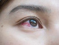 Closeup eye of asian woman with broken capillaries in the eye. Closeup eye of asian woman with broken capillaries in eye Royalty Free Stock Photography