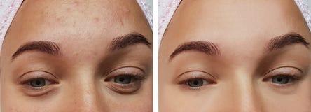 Closeup för flickaögonbehandling, före och efter tillvägagångssätt, terapiakne royaltyfri foto