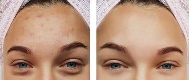 Closeup för flickaögonbehandling, tillvägagångssätt för borttagning före och efter, terapiakne arkivfoto