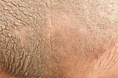 Closeup female face with clay mud facial mask. Spa beauty treatment and skin care. Closeup female face with clay mud facial mask. Background texture Stock Photos