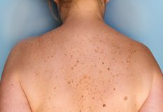 Closeup of freckles on the back. Pigmentation and lot of birthmarks. Skin mole problems. stock images