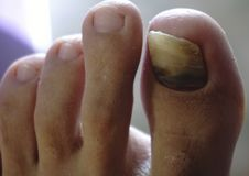 Closeup of a hairy human foot and toes with a cracked and black bruise toe nail on the largest toe on white background. Closeup of a hairy human foot and toes Stock Image
