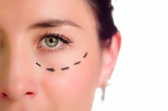 Closeup half of face caucasian woman with dotted lines drawn around left eye, preparing cosmetic surgery stock image