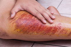 Closeup hand embracing injured knee with painful abrasion from f. Closeup on hand embracing injured knee with painful abrasion scratches from fall Royalty Free Stock Image