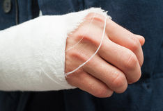 Closeup hand and fingers with white bandage. As trauma or accident concept royalty free stock image