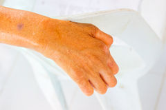 Closeup hand of old man suffering from leprosy on the backrest  Stock Photo