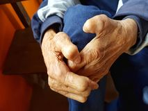 Closeup hands of asian old man suffering from leprosy, Thailand. Royalty Free Stock Image