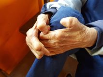 Closeup hands of asian old man suffering from leprosy, Thailand. Stock Images