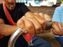 Closeup hands of asian old man suffering from leprosy, Thailand. Stock Photography