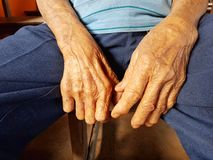 Closeup hands of asian old man suffering from leprosy, Thailand. Royalty Free Stock Photo