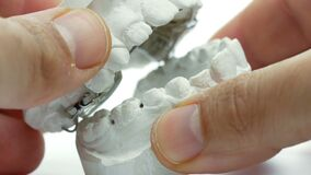 dental appliance doctor teeth hands