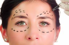 Closeup headshot caucasian woman with dotted lines drawn around eyes looking into camera, preparing cosmetic surgery Royalty Free Stock Images