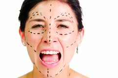 Closeup headshot caucasian woman with dotted lines drawn around face looking into camera, preparing cosmetic surgery Royalty Free Stock Images