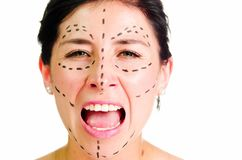 Closeup headshot caucasian woman with dotted lines drawn around face looking into camera, preparing cosmetic surgery Stock Photo