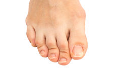 Closeup of  human foot  with a cracked and peeling toe nail on the largest toe Royalty Free Stock Photography