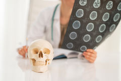 Closeup on human skull and doctor in background Stock Photos