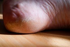 Closeup image of a heel on the foot with a white callus. Image for medical purposes royalty free stock photos