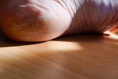 Closeup image of a heel on the foot with a white callus. Image for medical purposes stock photography