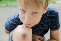 Injured young kid`s knee after he fell down. Closeup of injured young kid`s knee after he fell down on pavement. Boy`s face and wounded scraped leg on summer day Royalty Free Stock Photo