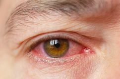 Closeup irritated infected red bloodshot eyes, conjunctivitis.  royalty free stock photography