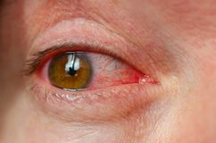Closeup irritated infected red bloodshot eyes, conjunctivitis.  stock photos