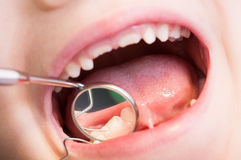 Closeup of kid or child mouth at dentist. Dental mirror and teeth reflection stock image