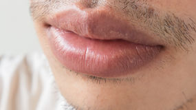 Closeup of lips man problem health care, Herpes simplex Royalty Free Stock Photography