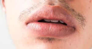 Closeup of lips man problem health care, Herpes simplex Stock Photos