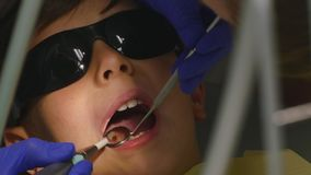 Closeup little kid during procedure of teeth drilling treatment at dentist clinic office.  stock video