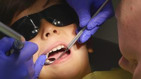 Closeup little kid during procedure of teeth drilling treatment at dentist clinic office.  stock video footage