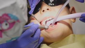 Closeup little kid during procedure of teeth drilling treatment at dentist clinic office.  stock footage