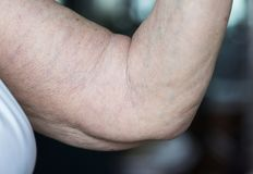 Closeup of loose elderly arm stock image