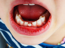 Closeup of lose tooth in a girls mouth. Closeup of lose tooth in a little girls mouth, between beautiful white teeth Stock Photos