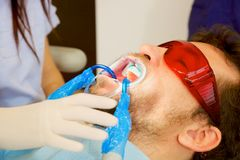Closeup of man getting teeth whitening Royalty Free Stock Photography