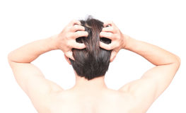 Free Closeup Man Hand Itchy Scalp, Hair Care Healthy Concept Royalty Free Stock Photos - 96846588