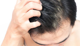 Closeup man hand itchy scalp, Hair healthy care concept Stock Photo