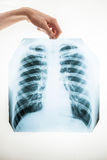 Closeup of man holding lungs x-ray film over white background Royalty Free Stock Image